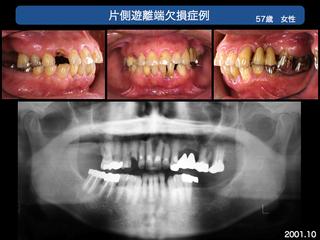 上越歯科医師会発表 3完成.008-001.jpg