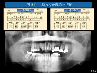 上越歯科医師会発表 3完成 2 のコピー.001.jpeg